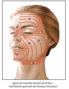 Chirurgie des cicatrices