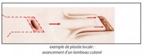Chirurgie des cicatrices 1