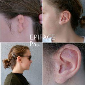 Agénésie ou amputation de l'oreille - Epithèse